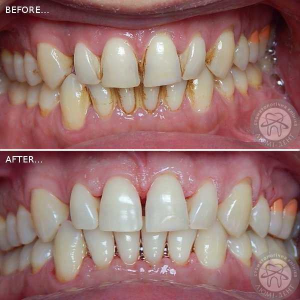 Гигиеническая чистка зубов изоражения