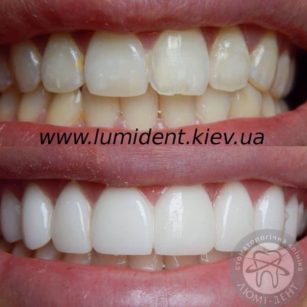 заказать виниры на зубы через интернет