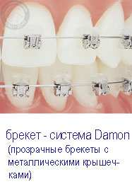 самолигирующие брекеты damon 3 киев