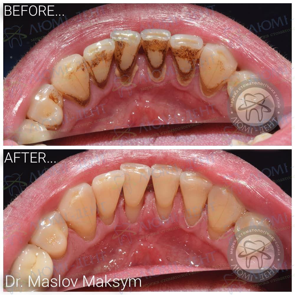 Як прибрати коричневі плями на зубах