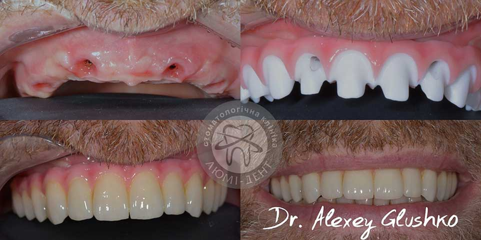Tooth implantation dental implants photo Lumident