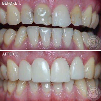 Реставрация зубов наращивание зубов эмали цены Киев ЛюмиДент