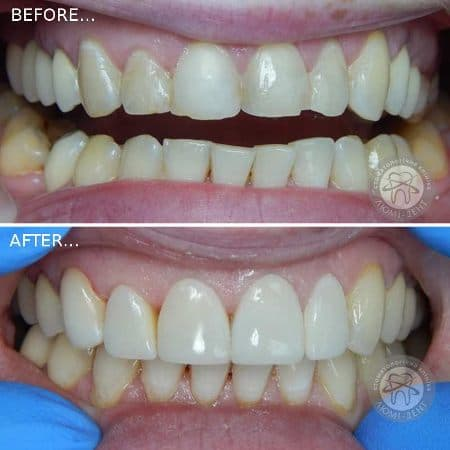 Tooth Extension