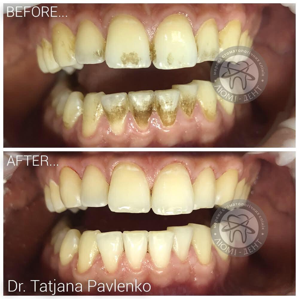 До и после чистки камня зубов