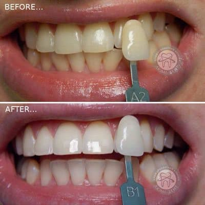 Teeth whitening magic Smile