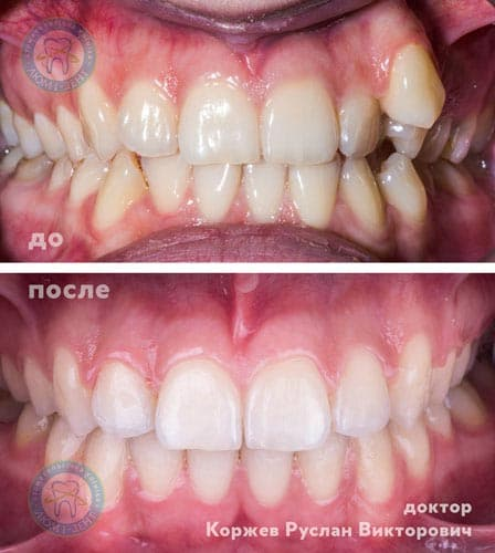 Orthodontist dentist correction bite Kiev