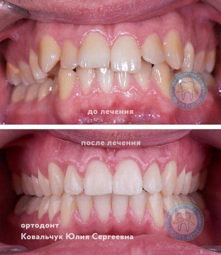Good Children's Orthodontist Dentist Kiev Lumi-dent