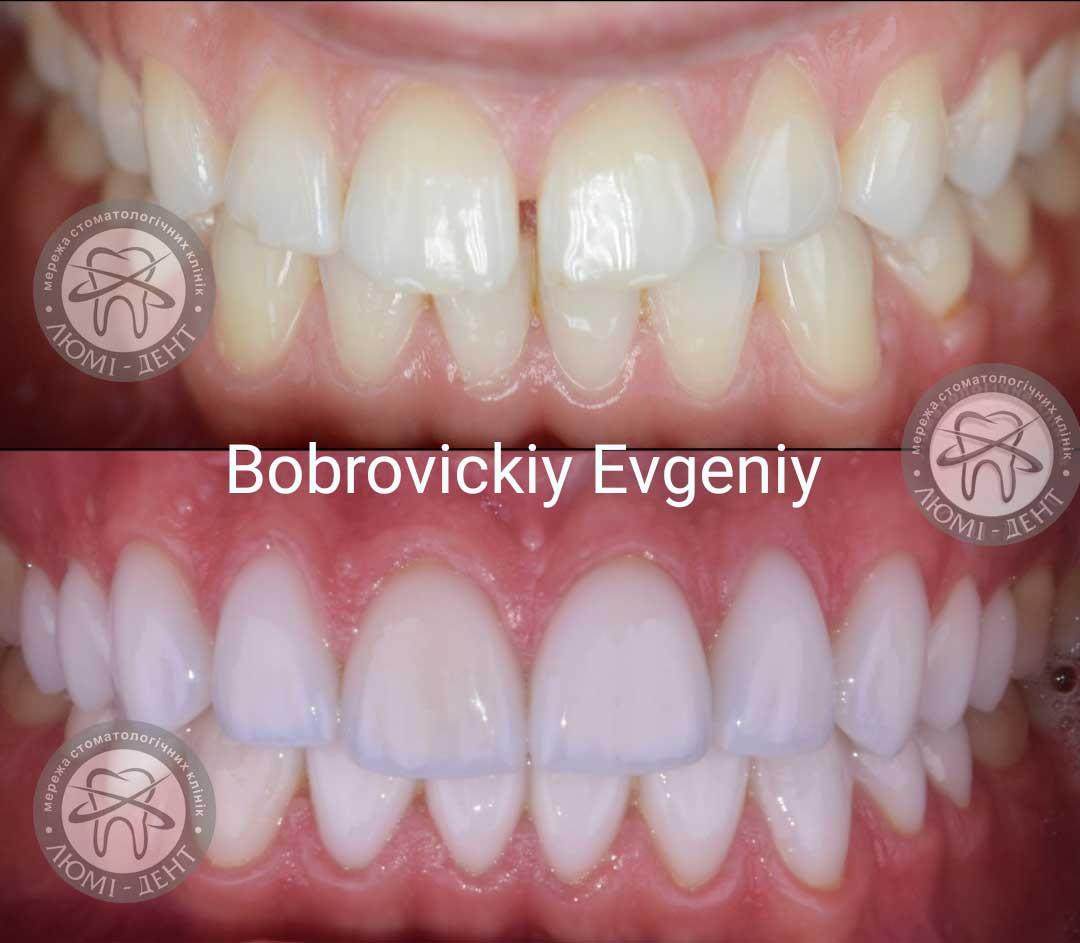 Вініри Київ ціна на керамічні зуби відгуки  фото  Люмі-Дент e3642da00afd6