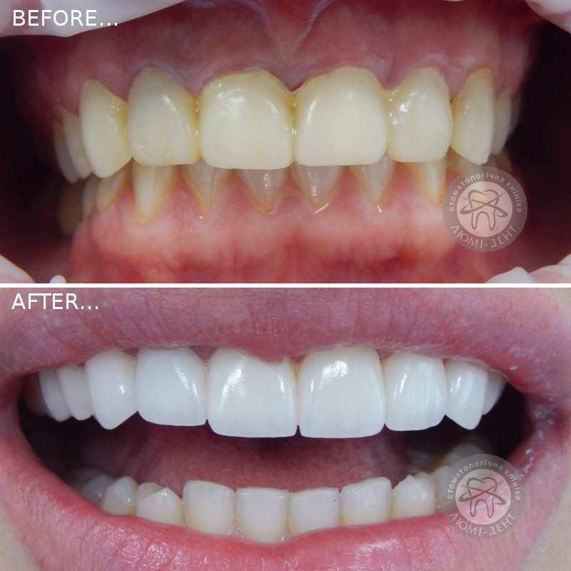 лучшие виниры на зубы