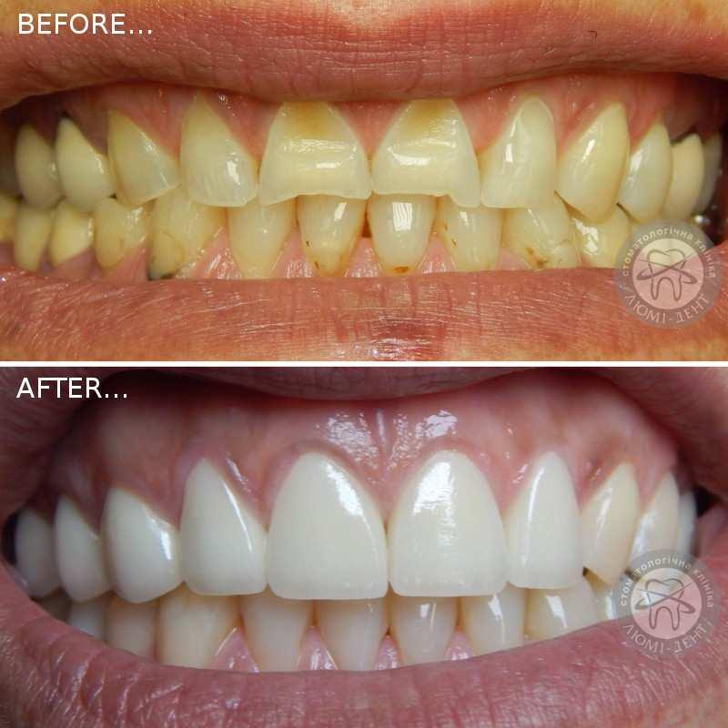 сколько служат виниры на зубах краснодар