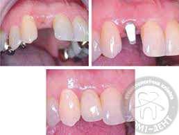 одиночные коронки с опорой на имплант, фото, до и после