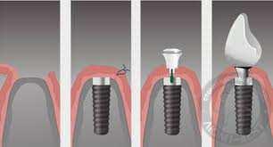 имплантация зубов киев, этапы имплантации
