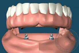 зубные протезы с опорой на импланты