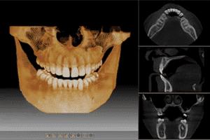 компьютерная томограмма, кт зубов