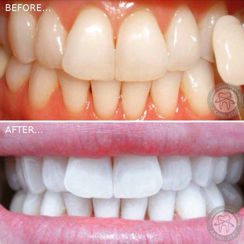 Отбеливание зубов сравнение