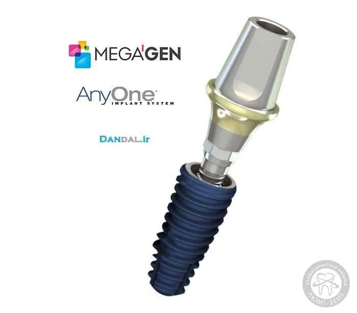 импланты киев, импланты megagen