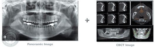 панорамный снимок зубов и компьютерная томограмма, фото