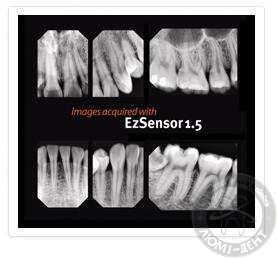 прицельный снимок зубов, фото