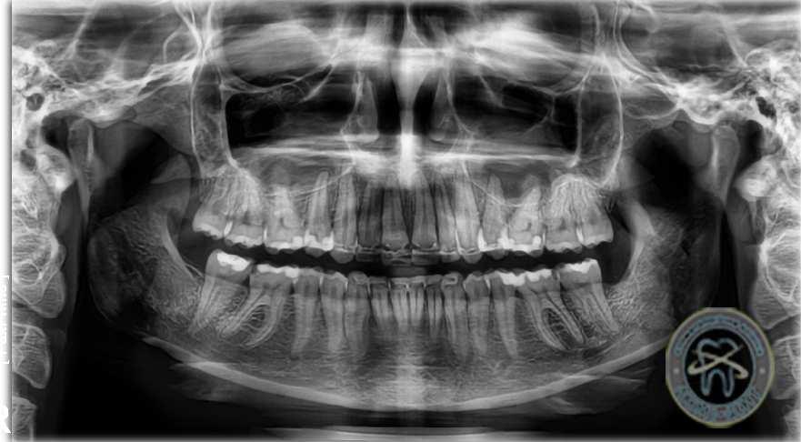 Сколько стоит сделать панорамный снимок зубов