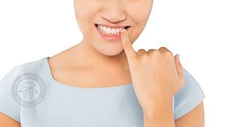 Подвижность зубов фото Люмидент