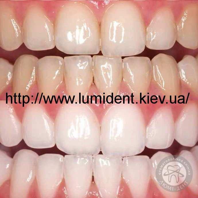 Чем очистить коричневый налет на зубах