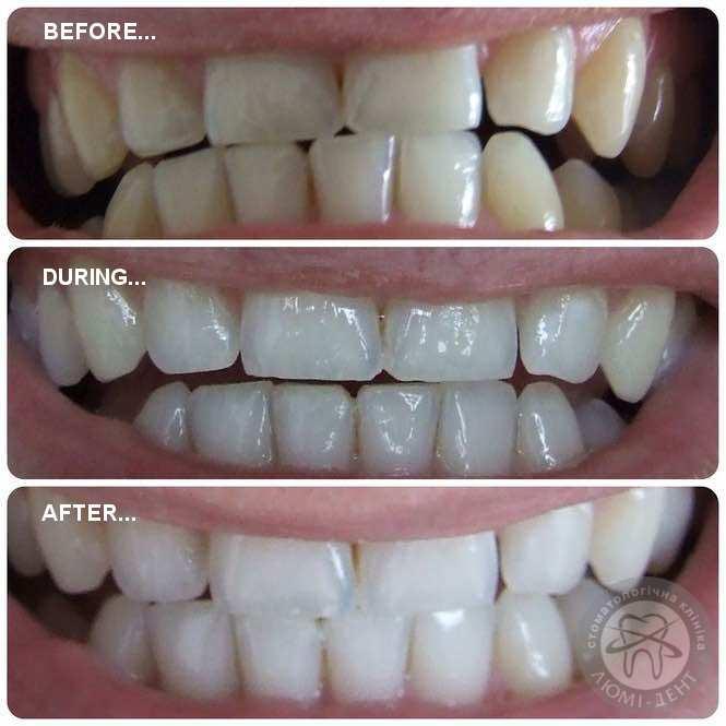Химические отбеливающие средства для зуб