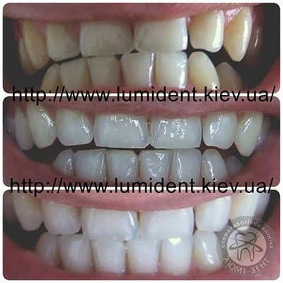 zoom laser teeth whitening
