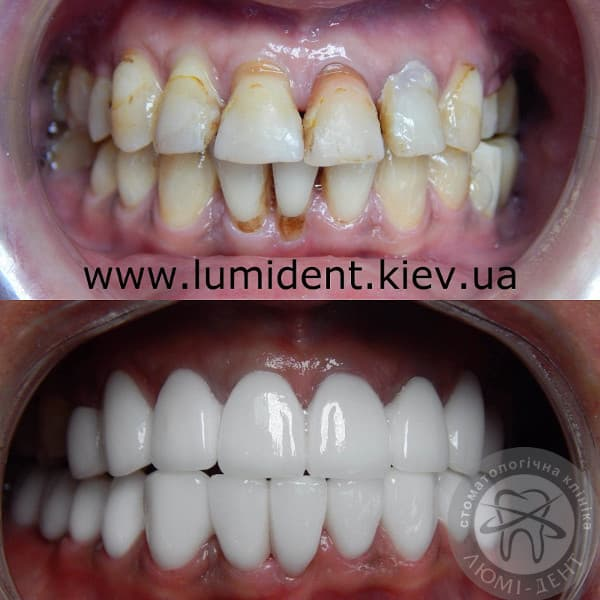 Photos with veneers and without veneers