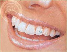 украшение зубов киев