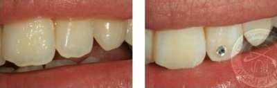 украшение зубов киев, пример расположения украшений