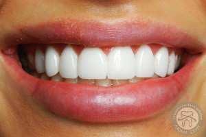 Лікар стоматолог Київ ціни - естетична стоматологія Люмі-Дент ad8ba0fae377c