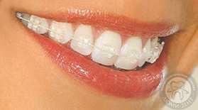 ортодонт київ