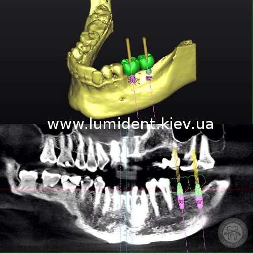 имплантация зубов киев, фото
