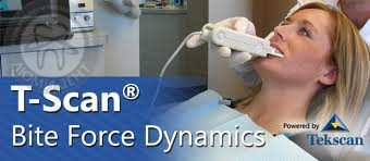 T-SCAN — революционная технология диагностики окклюзии и прикуса.