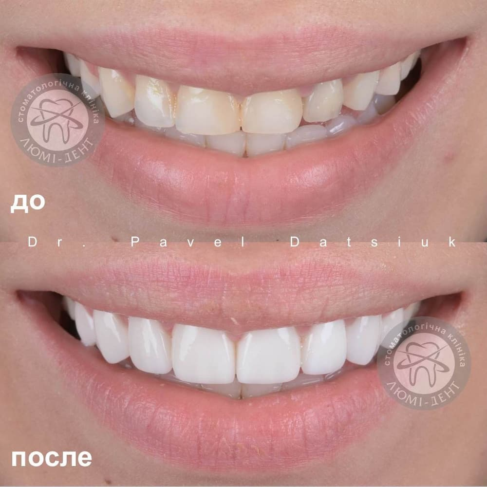 Dental clinic Kiev price photo Lumi-Dent