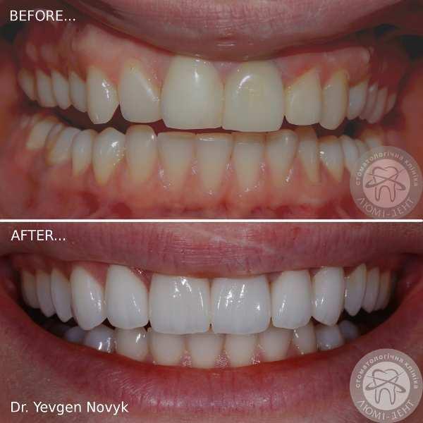 ... Керамічні зубні вініри фото до та після вінірінгу Люмідент 66903b38c8a86