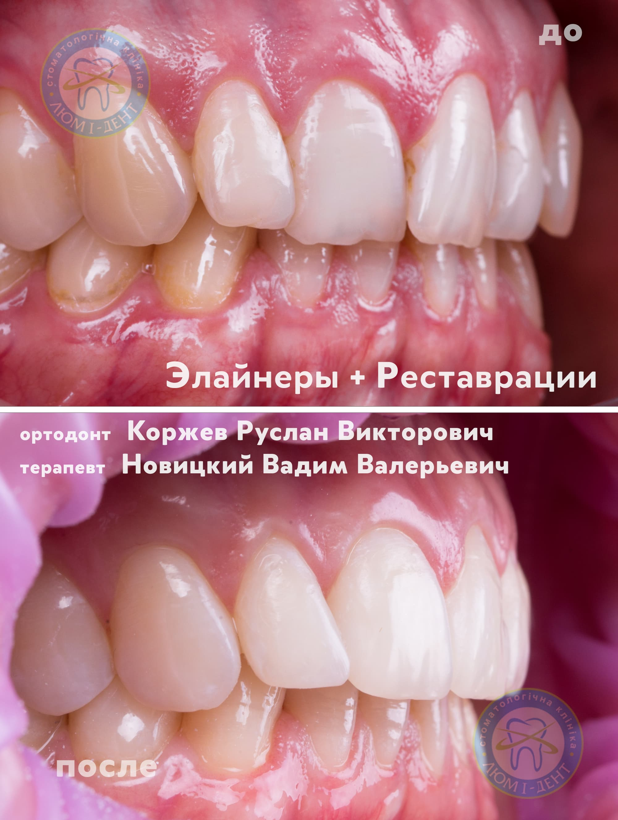 Treatment of malocclusion teeth photo Kiev Lumi-Dent