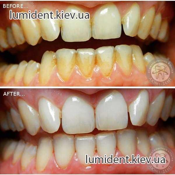 Чистка зубов ультразвуком тюмень