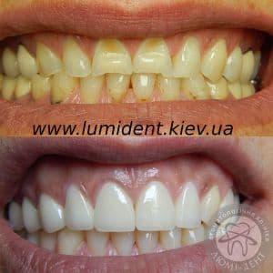 Стоимость виниров для зубов