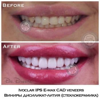 veneers Kiev, photo, before and after