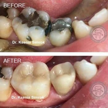Tooth filling, clinic Lumi-Dent