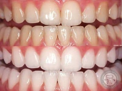 Teeth whitening in Kiev