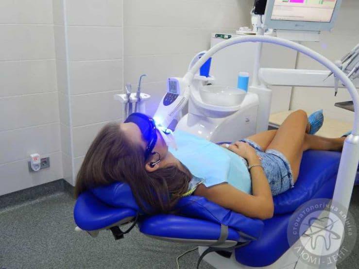 система отбеливания зубов с изготовлением капы