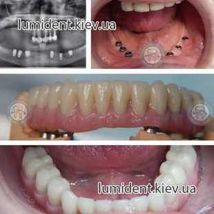 teeth implantation