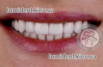 Special offer! Prices for ceramic veneers are reduced!