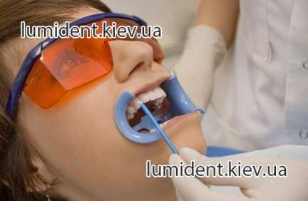 Special offer professional cleasing of the teeth, Kiev Lumi-Dent