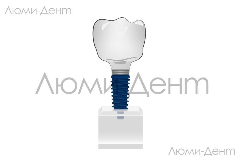 Types of dental implants rating clinic LumiDent Kiev pics photo